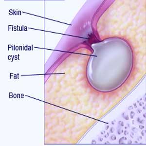 Dr  V P Singh Clinic - Pilonidal Sinus